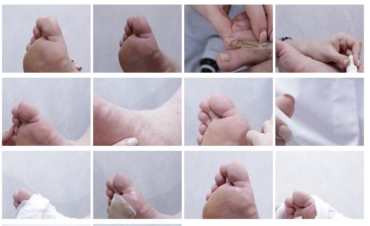 Этапы педикюра для больных даибетом